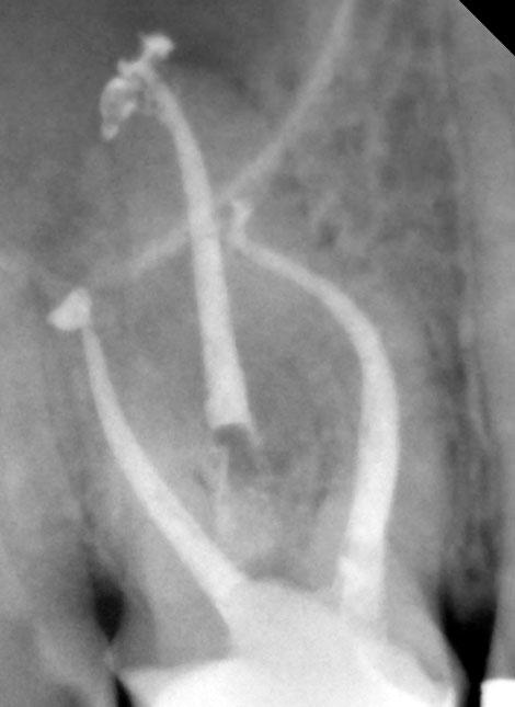 tratamento endodontico Dr Alexandre Goulão Dentarmed Almada