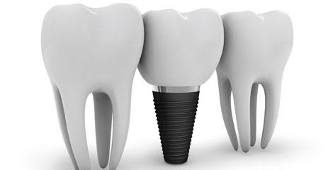 Implantes-4700-2400-web.jpg