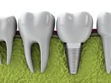 Importância do implante na ausência de um, vários ou todos os dentes