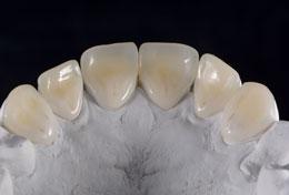 lentes de contacto dentarias palatinas.jpg