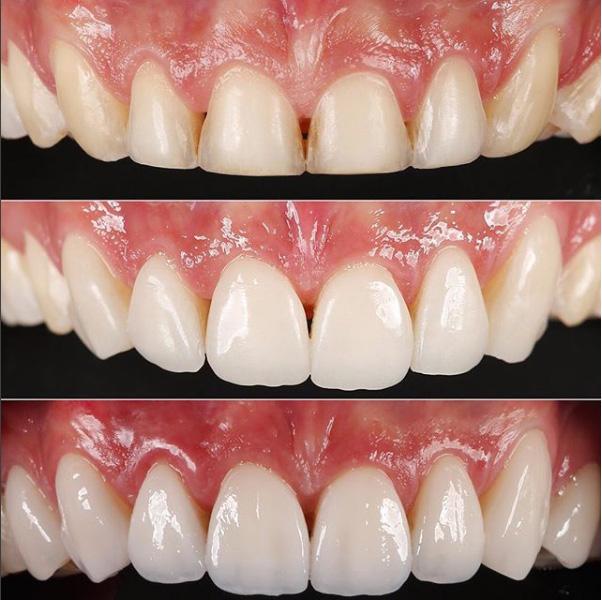 caso clinico facetas dentarias