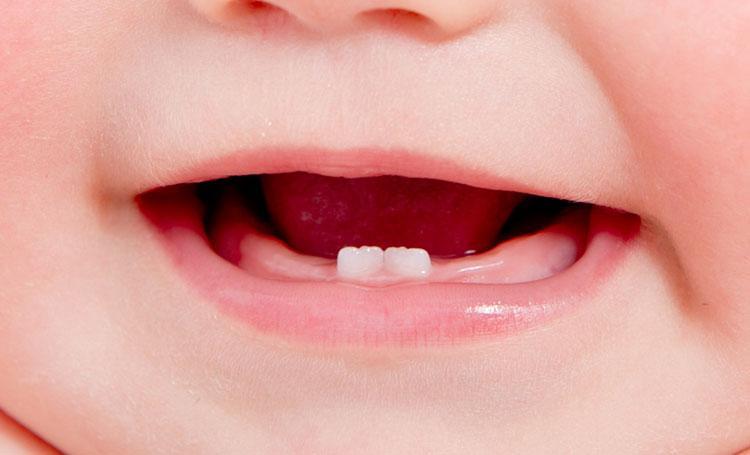 O aparecimento dos dentes do bebé causa febre?
