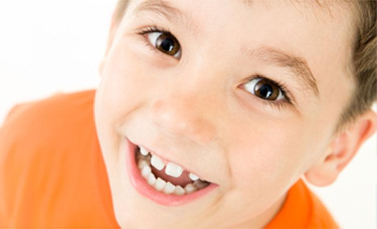 Espaço entre dentes de leite – a sua importância para os futuros dentes permanentes