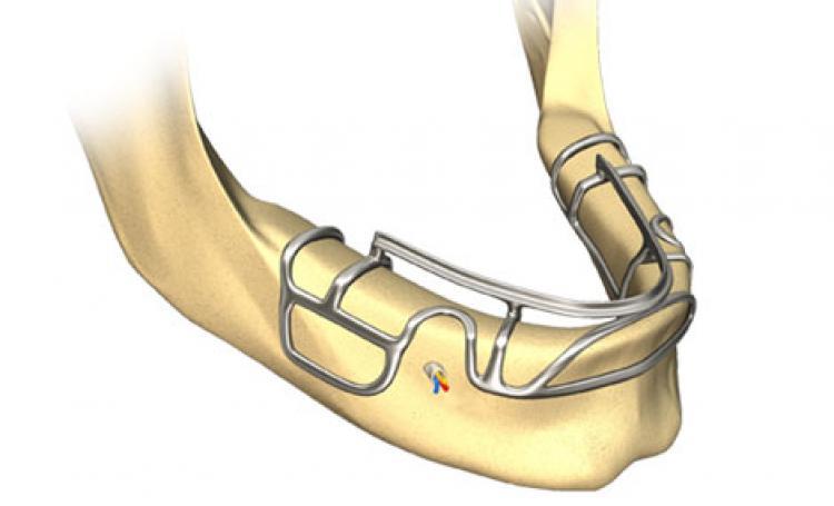 Implantes Dentários Híbridos Personalizados