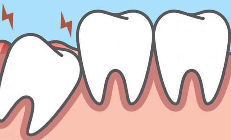 Com que idade os dentes do siso devem ser extraídos?