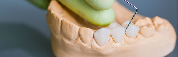 Ponte fixa sobre dente