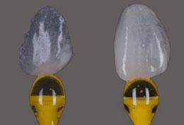 Facetas ultrafinas de ceramica